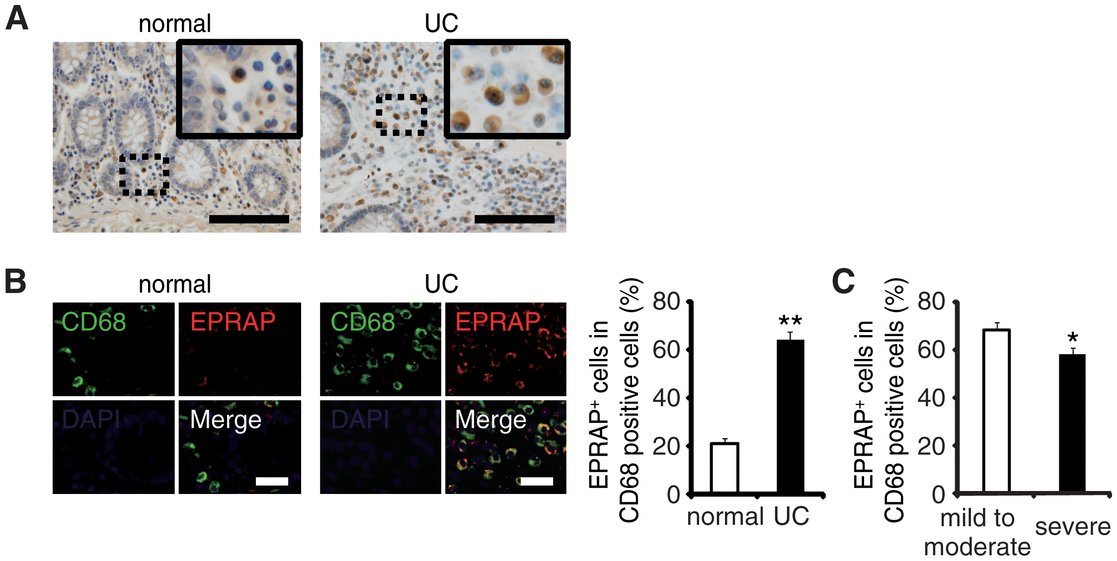 The colons of ulcerative colitis (UC) showed accumulation of EPRAP-positive macrophages.