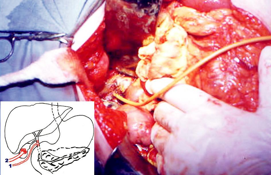 Vložený Kehrov T-drén do ductus choledochus cez perforačný otvor – peroperačný pohľad  Schématický nákres chirurgického riešenia spontánnej ruptúry ductus choledochus 1. Kehrov T-drén v d. choledochus, 2. Malecotov katéter v cholecyste  Pic. 1. Inserted Kehr T drain into ductus choledochus through  perforation – peroperative view Schematic layout of surgical treatment of spontaneous rupture of ductus choledochus 1. Kehr T drain 2. Malecot catheter in gall bladder