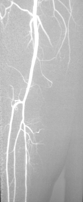 Digitálna subtrakčná angiografia po vykonaní perkutánnej transluminálnej angioplatiky arteria poplitea a tractus tibiofibularis na pravej dolnej končatine s výborným efektom Fig. 3. Digital subtraction angiography following percutaneous angioplasty of the popliteal artery and the tibiofibular tract on the right lower extremity, with excellent outcome