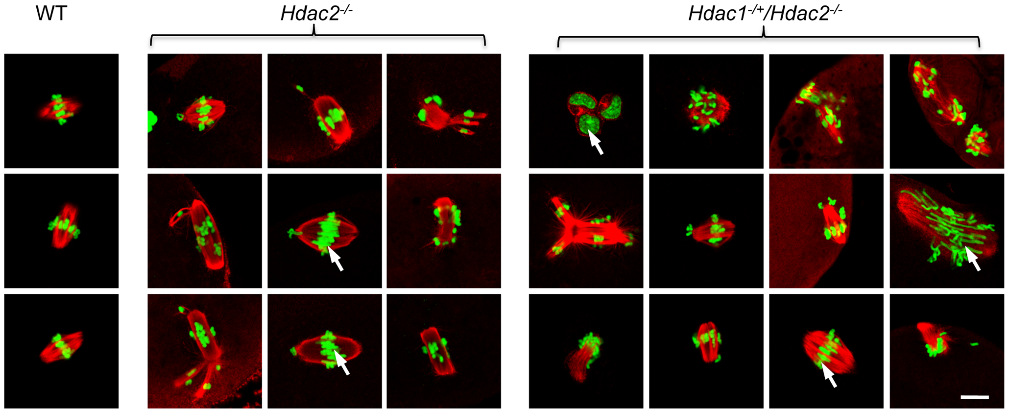 Loss of maternal HDAC2 causes defective chromosome condensation and congression in MII eggs.