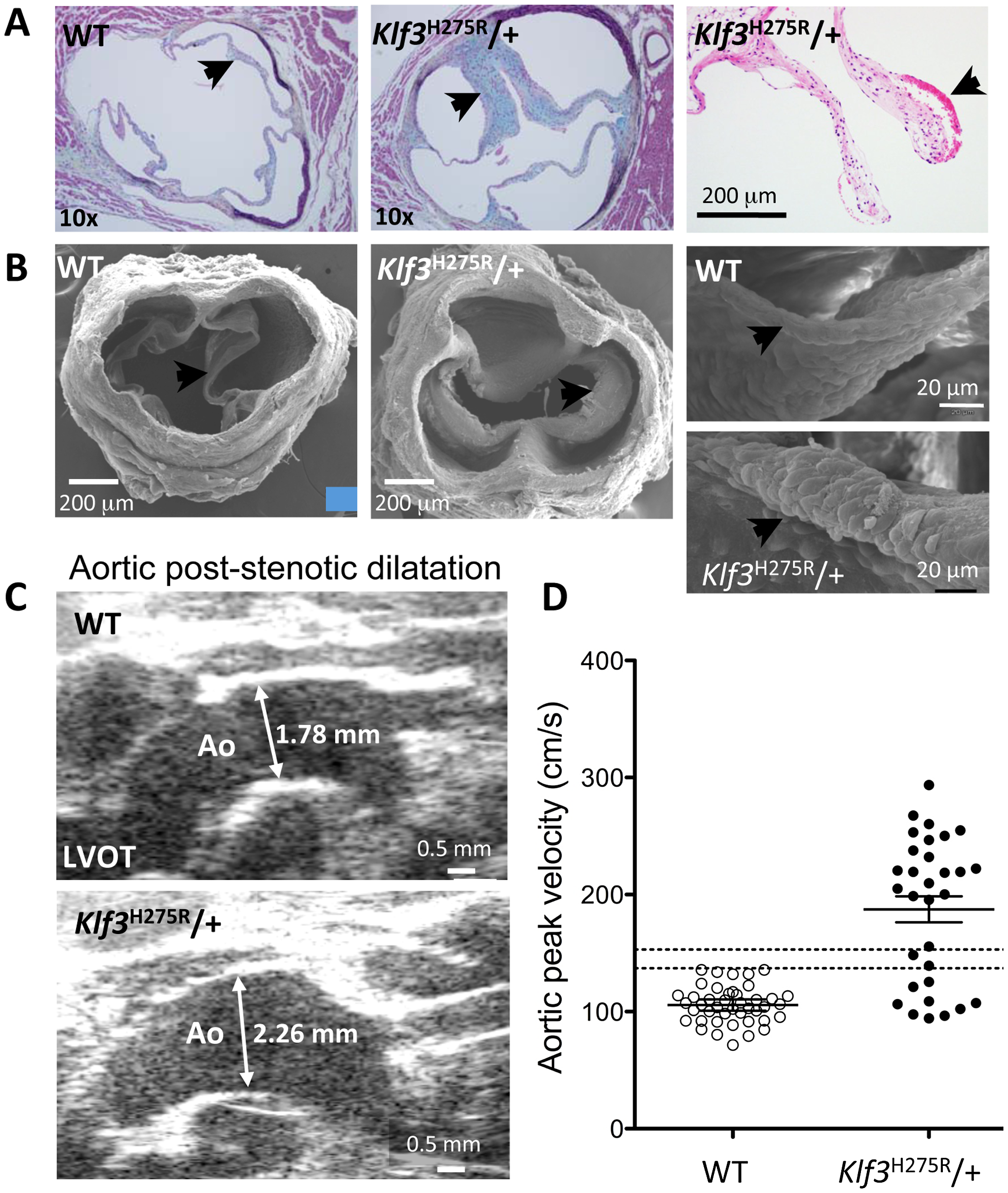 Morphological evidence for aortic valvular stenosis in <i>Klf3</i><sup>H275R</sup>/+ mice.