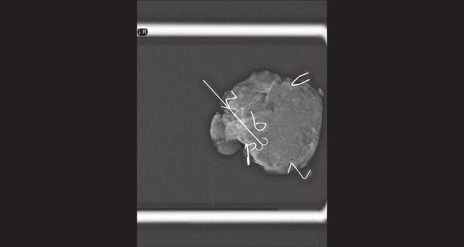 """Peroperační RTG resekátu − okraje značeny """"písmeny"""" ze svorek z kancelářské sešívačky; klipem je značené reziduum nádoru v okraji resekátu (tímto směrem je poté shavingový resekát širší Fig.2: Peroperative X-ray of the specimen – margins marked with """"letters"""" (staples for a desktop stapler); tumor residuum marked with a clip near the margin of the specimen (shaving in this direction is wider)"""