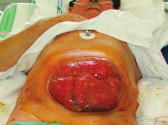 Situace 1 týden po rekonstrukční operaci GIT s ponechaným laparostomatem (pacient č. 9) Fig. 3 The same patient 1 week after his GIT reconstruction procedure with laparostomy (patient No 9)