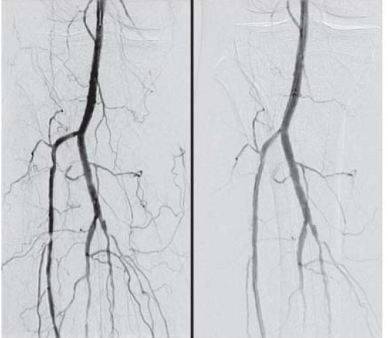 Obr. 5.1. DSA artérií PDK