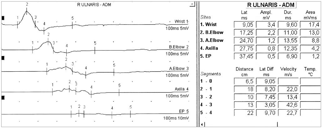 Obr. 4a. U 51letého muže s 9 měsíců trvající asymetrickou chabou kvadruparézou s poruchami čití byla diagnostikována CIDP – motorický neurogram n. ulnaris vpravo před léčbou.