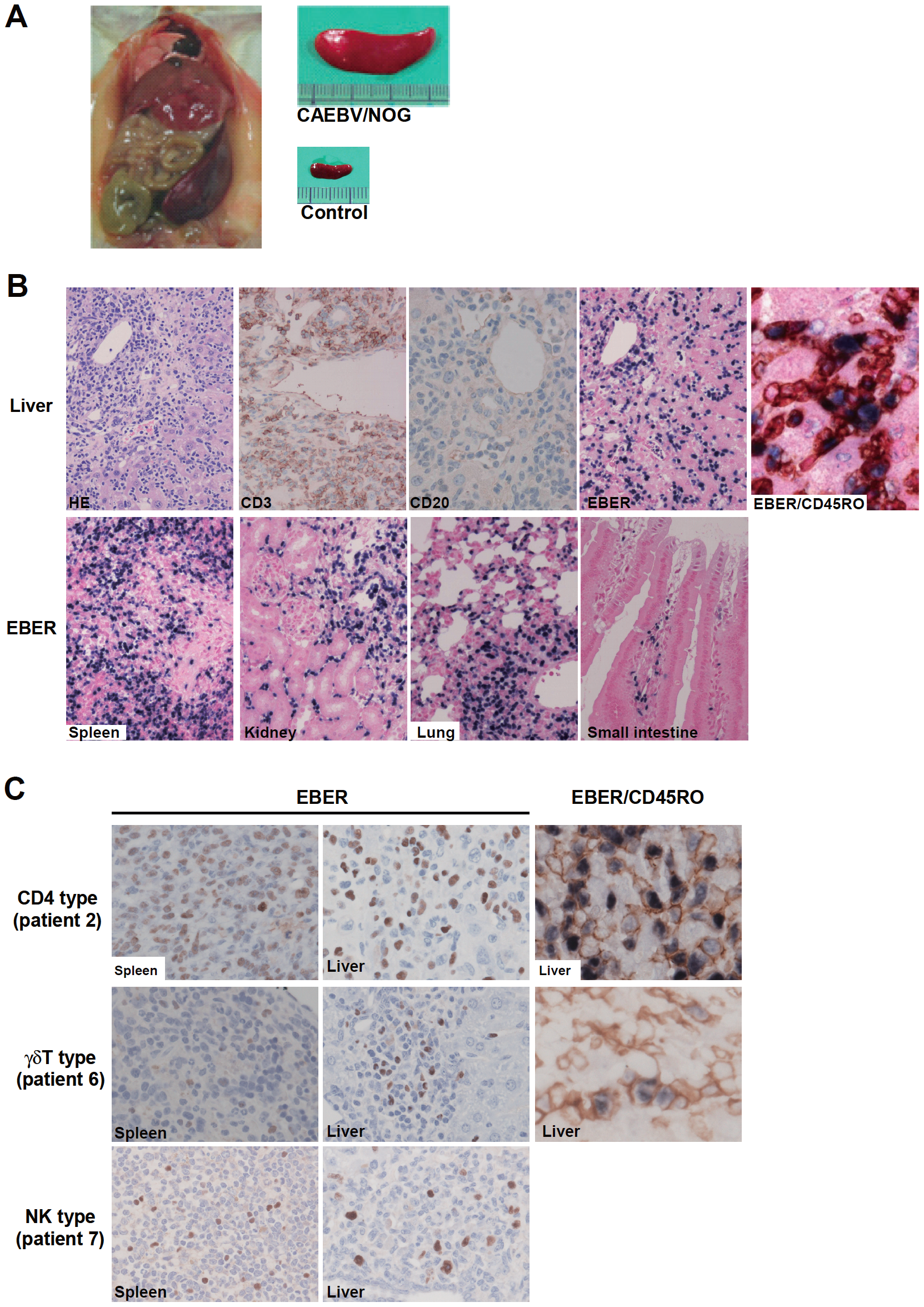 Pathological and immunochemical analyses on NOG mice transplanted with PBMC from CAEBV patients.