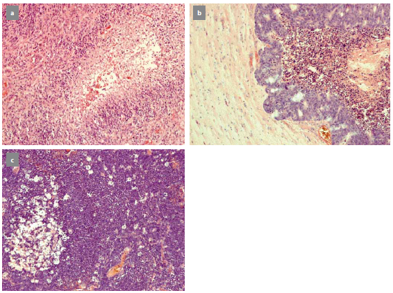 Typický nález glioblastoma multiforme (a), metastáza karcinomu rekta (b), primární lymfom CNS (c).