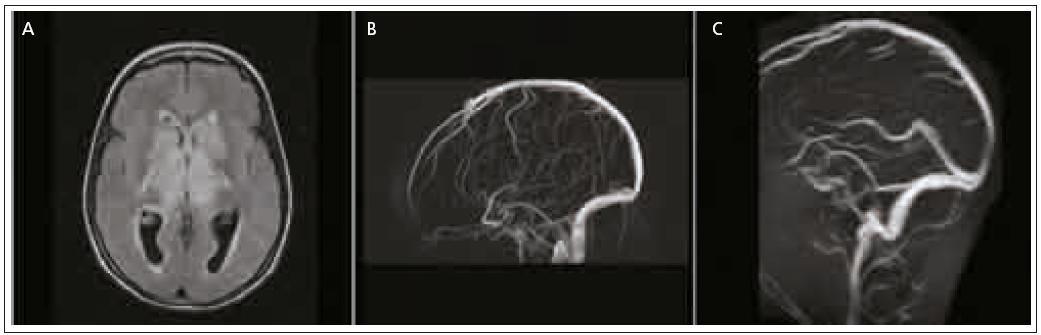 Obr. 1a. Výrazný edém v oblasti bazálních ganglií a thalamů oboustranně při trombóze hlubokého žilního systému na obrazech sekvence FLAIR. Obr. 1b. Žilní 3D PC MR angiografie prokazuje uzávěr hlubokého žilního systému a sinus rectus. Obr. 1c. Kontrolní 2D TOF MR angiografie po mechanické trombektomii sinus rectus a lokální trombolýze mikrokatétrem zavedeným retrográdně do místa vyústění v. magna do sinus rectus. Hluboký žilní systém je průchodný. Následovala neurologická úprava stavu s postupným odezněním edému.