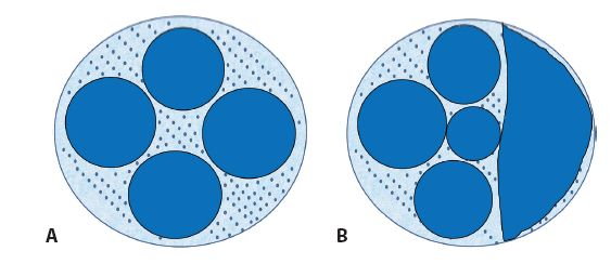 Schéma 3 A. FL, typický nodulárny rast, nádorové bunky prítomné aj v internodulárnych zónach. B. FL, zmiešaný nodulárny a difúzny rast.