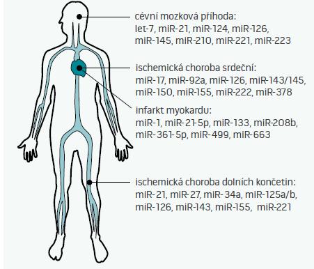 mikroRNA jako biomarkery aterosklerózy Cirkulující mikroRNA je možné využít k diagnostice aterosklerózy a jejích manifestací – ať již cévní mozkové příhody, ischemické choroby srdeční, infarktu myokardu, či ischemické choroby dolních končetin. Na obrázku jsou uvedeny jen vybrané mikroRNA, jejich plný výčet není z kapacitních důvodů možný. Je patrné, že některé miRNA jsou u všech podob aterosklerózy alterovány vždy – tyto pak pravděpodobně odrážejí přítomnost aterosklerózy jako takové. Jiné miRNA, např. miR-499, se v krvi běžně nevyskytují a dostávají se do ní až při nekróze buněk. Protože hladiny miRNA se mění vlivem medikace a různých komorbidit či rizikových faktorů (např. vlivem kouření), identifikace těch nejvíce specifických i senzitivních miRNA, které budou odrážet pouze přítomnost konkrétní nemoci a nic jiného, zůstává výzvou pro další výzkumníky v této oblasti.