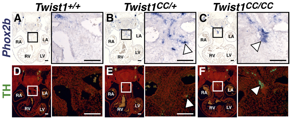 The Twist-box domain of Twist1 is required for repression of ectopic neurogenesis.