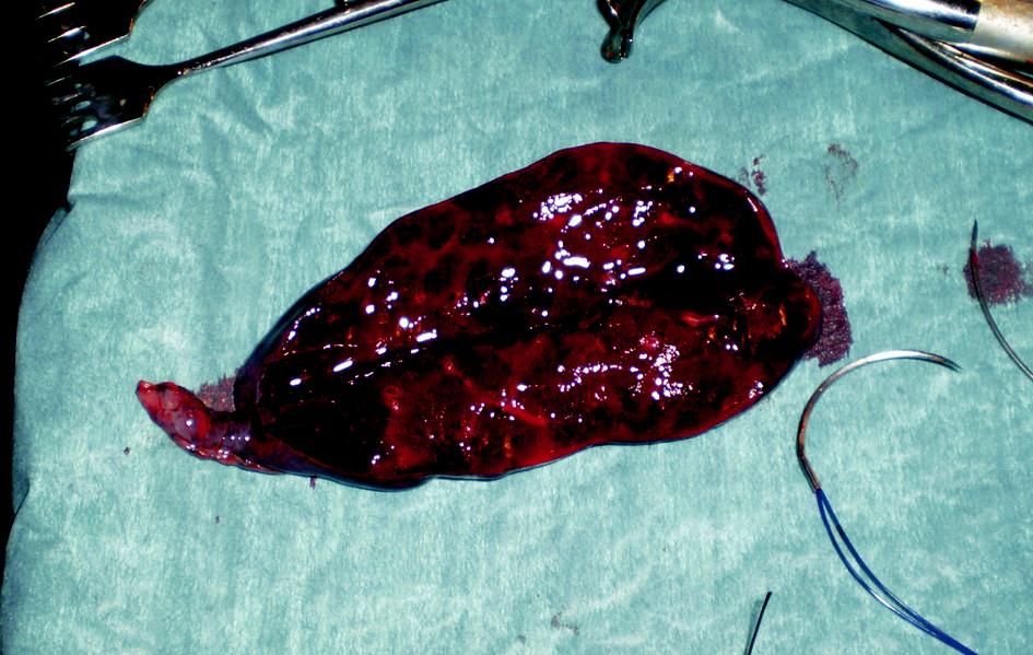 Resekát postižené části levé plíce Fig. 4. Resected part of the affected left lung
