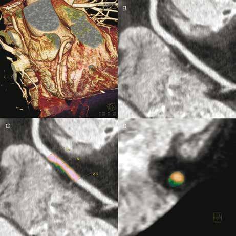 """CT angiografie: """"měkký"""" plát způsobující hemodynamicky nevýznamnou stenózu ACD (A), který obsahuje poměrně významné lipoidní jádro (B). Jedná se tedy o vysoce rizikový cholesterolový plát. Charakter plátu je patrný při cílené analýze i (C, D – lipoidní jádro tmavě zelené)."""