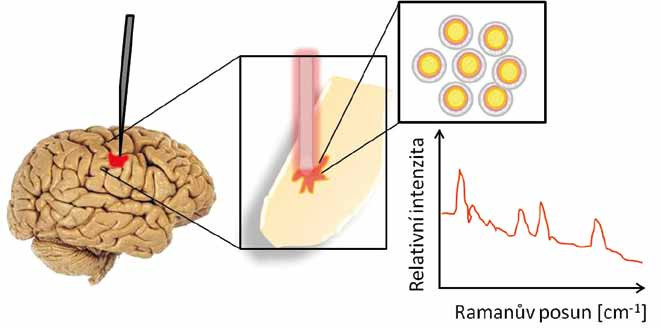 Detekce nádorových buněk mozku pomocí Ramanova skeneru. Inertní zlaté nanočástice se kumulovaly v mozku v místě nádoru, byly detekovány sondou a zobrazeny v Ramanově spektru.