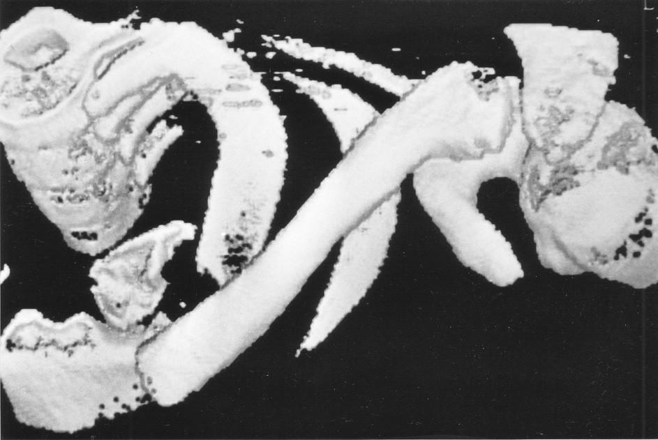 3D CT rekonstrukce šikmé extraartikulární zlomeniny mediálního klíčku vlevo Fig. 4. 3D CT reconstruction of the oblique extra-articular fracture of the medial end of the left clavicle