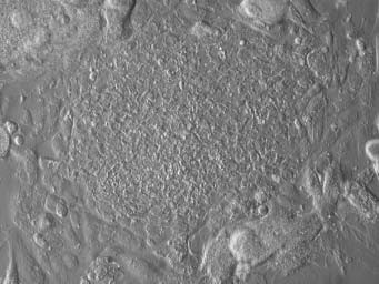 Počínající kolonie buněk primitivního ektodermu derivovaná z vnitřní buněčné masy lidské blastocysty.