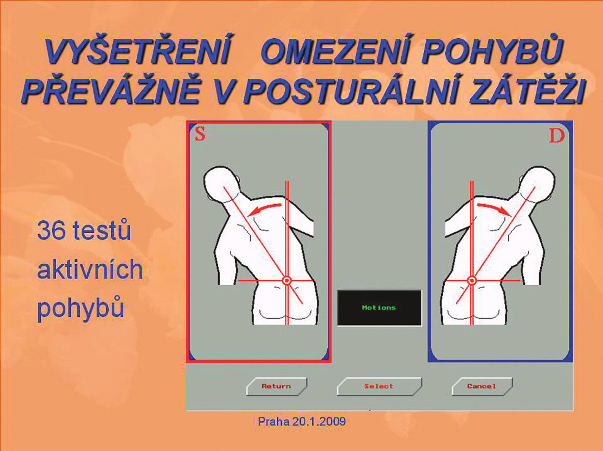 Obr. 1a. Vyšetření omezení pohybů převážně v posturální zátěži.