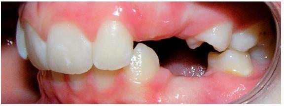 Chrup zleva po extrakcích stálých zubů