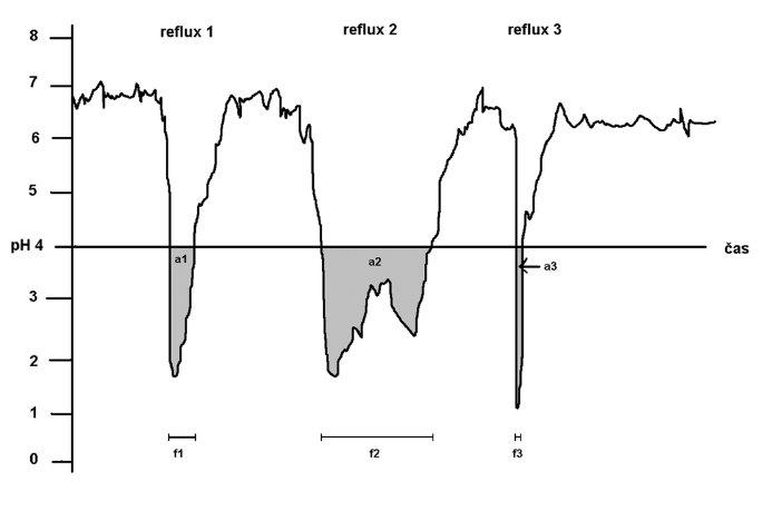 Obrázek ukazuje 3 možné parametry, kterými můžeme refluxní epizody hodnotit. Na obrázku jsou znázorněny 3 refluxní epizody (reflux 1, reflux 2, reflux 3). Jejich celkový frakční čas vznikne, pokud součet doby trvání všech refluxů (f1 + f2 + f3) vydělíme celkovým časem pH-metrického záznamu. Reflux area index vznikne součtem ploch pod pH 4,0 (a1 + a2 + a3) jednotlivých refluxních epizod. Nejpřesnější parametr na posouzení závažnosti refluxu je reflux area index.