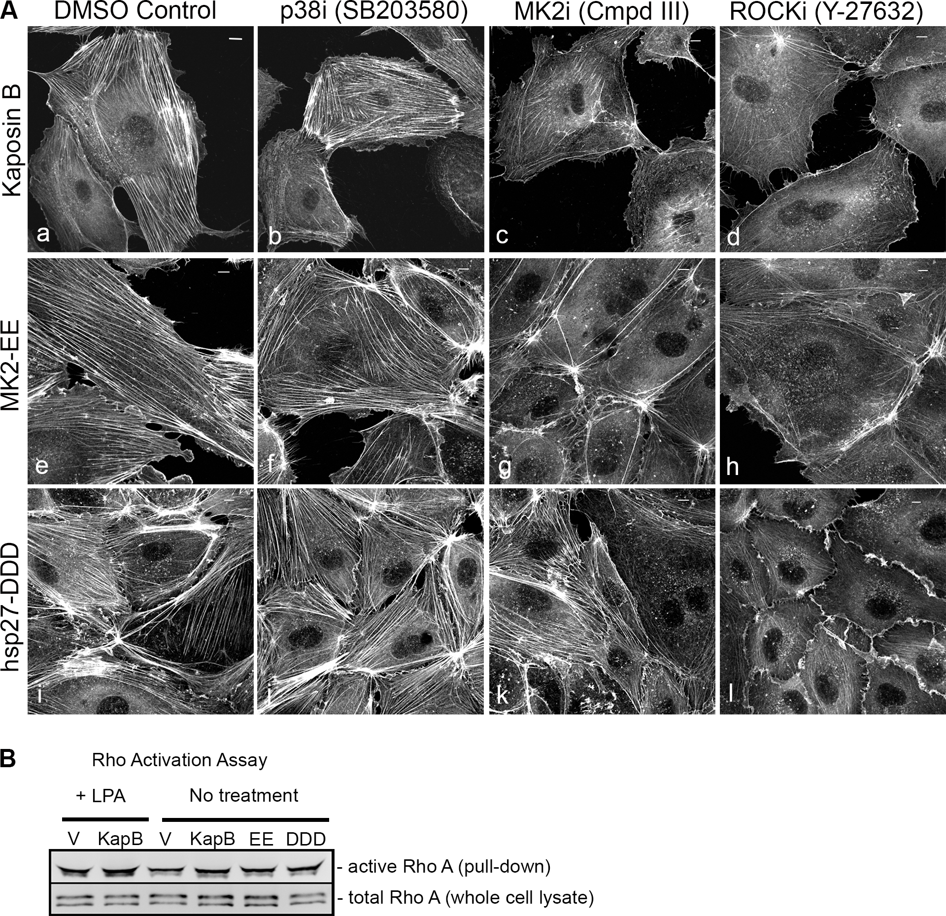 KapB requires the kinase MK2 and RhoA-GTPase to induce actin stress fibers in primary endothelial cells.