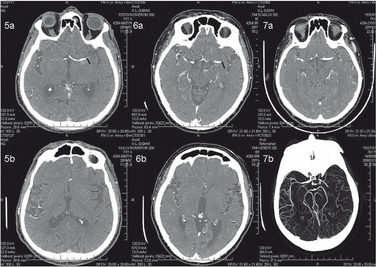 Obr. 5–7 zobrazují čtyři různé pacienty. Snímky použity z databáze I. neurologické kliniky FN u sv. Anny v Brně (ICRC). Obr. 5a) Patrná okluze ACM sin. M1 (černá linie) a minimální plnění větví ACM ve fossa Sylvii na řezu v úrovni trombu. Obr. 5b) Diskrétní plnění tepen ve fossa Sylvii (černé linie) u stejného pacienta. Hodnocení kolaterální cirkulace Schramm 0, Tan 1, Rosenthal 1. NIHSS Baseline 20, úmrtí po 10 dnech hospitalizace. Obr. 6a) U dalšího pacienta je patrná okluze ACM sin. M1 (černá linie). Na rozdíl od snímku na obr. 5a se větve ve fossa Sylvii lépe plní, což svědčí o dobrém zapojení kolaterál u tohoto pacienta. Zapojení kolaterál je ještě lépe vidět na obr. 6b, který ukazuje dobře vytvořené kolaterální řečiště (černé linie). Hodnocení kolaterální cirkulace: Schramm 1, Tan 2, Rosenthal 3. NIHSS Baseline 15, při propuštění mRS 1. Obr. 7a) Akutní okluze ACM sin. M1 u třetího pacienta, kolaterální cirkulace velmi chudá/nepatrná; Schramm 0, Tan 1, Rosenthal 1. Není patrno plnění větví ACM sin. ve fossa Sylvii ani plnění tepen na konvexitě mozku cestou leptomeningeálních kolaterál. NIHSS Baseline 27, úmrtí po pěti dnech hospitalizace. Obr. 7b) Rekonstrukce (jiný pacient) okluze ACM sin. M1 (šedá linie), kolaterální cirkulace dobře vytvořena. Patrná retrográdní náplň tepen ve fossa Sylvii a plnění tepen na konvexitě mozku. NIHSS Baseline 20. Při propuštění mRS 3.