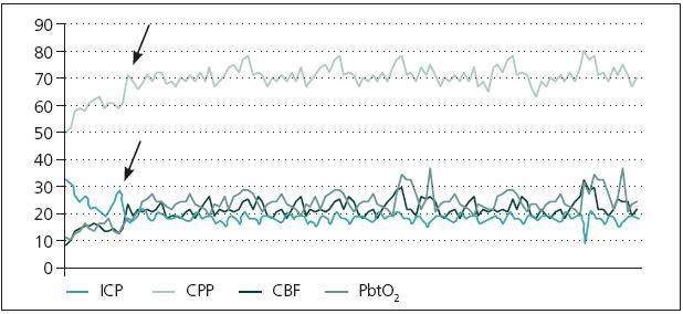 Změny ve sledovaných modalitách u operovaných pacientů. Červené šipky znázorňují moment intervence.
