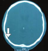Kauzuistika 1: CT mozku v den úrazu, kostní okno, axiální řez, patrna přítomnost vzduchu parietookcipitálně vpravo (nepřímá známka laterobazálního poranění).