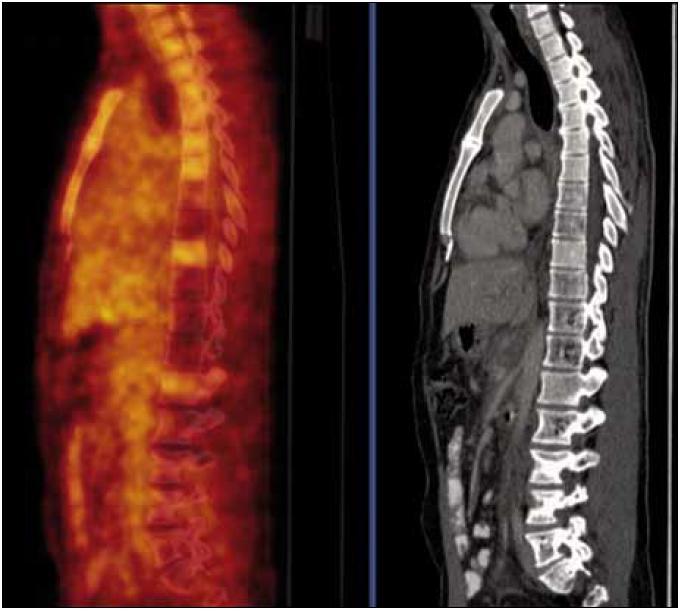 PET-CT vyšetření s podáním i.v. kontrastu provedené v září roku 2010. Jsou patrny četné hemagiomy patrné v obratlech Th (Th<sub>7,8</sub> a Th<sub>10–12</sub>) a LS (L<sub>2</sub>–S<sub>1</sub>) páteře a levé kosti kyčelní, v těchto místech detekujeme sníženou metabolickou aktivitu, která nedosahuje ani fyziologické aktivity v okolních nepostižených obratlech.