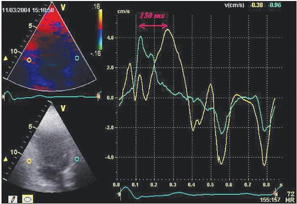 Obr. 1. Časově rychlostní křivky a intraventrikulární zpoždění před resynchronizací. Apikální 2dutinová projekce. Barevné tkáňové dopplerovské zobrazení. Žlutý kroužek na obrázku vlevo nahoře znázorňuje místo na zadní stěně levé komory, ze kterého byla derivována časově rychlostní křivka odpovídající barvy (na obrázku vpravo). Obdobně modrý kroužek a modrá křivka znázorňují časově rychlostní křivku z báze přední stěny levé komory. Vrchol žluté rychlostní křivky je o 150 ms opožděn oproti vrcholu modré křivky – tento časový úsek představuje intraventrikulární zpoždění mezi přední a zadní stěnou levé komory. ZS – zadní stěna, PS – přední stěna, ms – milisekundy