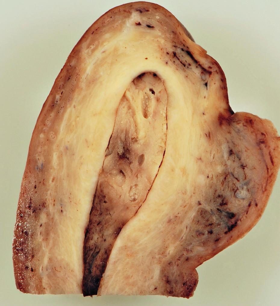 Průřez preparátem dělohy – solitární fibrózní tumor zcela vyplňuje děložní dutinu a věrně napodobuje běžný korporální polyp endometria