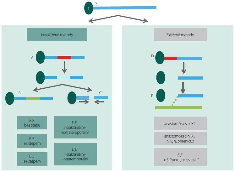Rekonstrukce n. VII.: 1 – mozkový kmen; 2 – lícní nerv; A – poškození centrálního segmentu lícního nervu se zachovaným proximálním pahýlem, B – rekonstrukce defektu vložením interpozitního štěpu, C – anastomóza bez štěpu, D – poškození proximálního úseku lícního nervu, E – anastomóza lícního nervu s jiným nervem eventuálně s lícním nervem druhé strany. Fig. 4. Facial nerve reconstruction: 1 – brainstem; 2 – facial nerve; A – damage of the central segment of the facial nerve with preservation of the proximal stump, B – reconstruction using inter-posited graft, C – anastomosis without graft, D – damage of the proximal segment of the facial nerve, E – anastomosis of the facial nerve with another nerve or with the facial nerve from the other side.