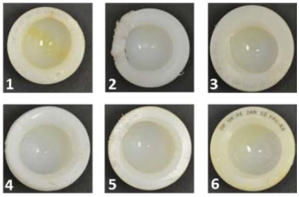 Fig. 1: Measured explanted polyethylene acetabular cups.
