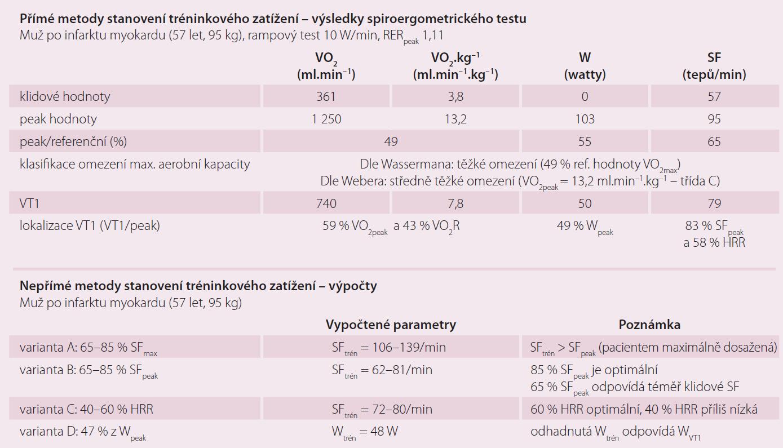 Ukázka přímých a nepřímých metod stanovení tréninkové zátěže u pacienta po akutním infarktu myokardu.