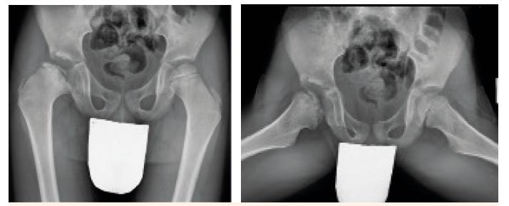 Obr. 2a, 2b. Předozadní a axiální snímek (Lauesteinova projekce) u 6letého pacienta s pravostrannou Perthesovou chorobou. Nález odpovídá IV. skupině dle Caterrala, skupině B dle Saltera a Thompsona a skupině C dle Herringa. Fig. 2a, 2b. AP and axial (Lauenstein) X-ray view of a 6-year-old boy with right sided Perthes disease. This finding correlates with group IV of the Caterral classification, group B of the Salter and Thompson classification and group C of the Herring classification.