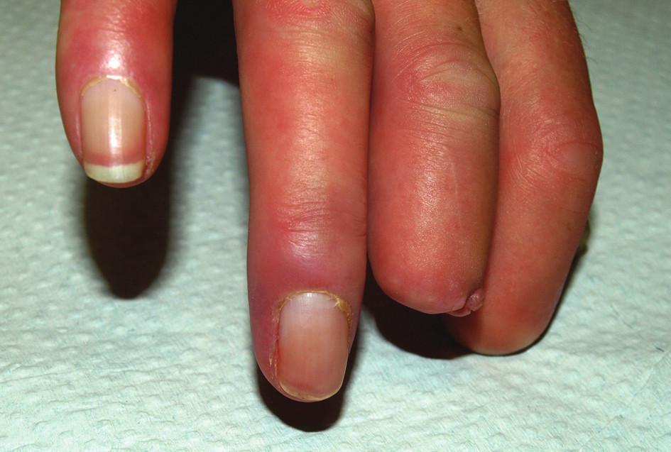 Stav v srpnu 2010. Zhojení defektu na dorzální straně distálního článku 4. prstu pravé ruky.