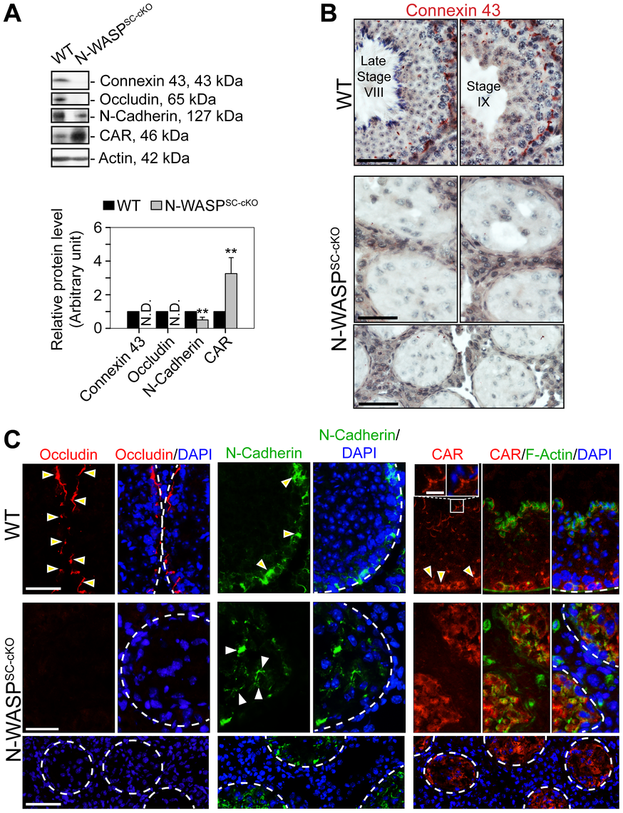 BTB junctional and basal ES proteins are absent or abnormally localized in the seminiferous epithelium of N-WASP<sup>SC-cKO</sup> mouse testes.