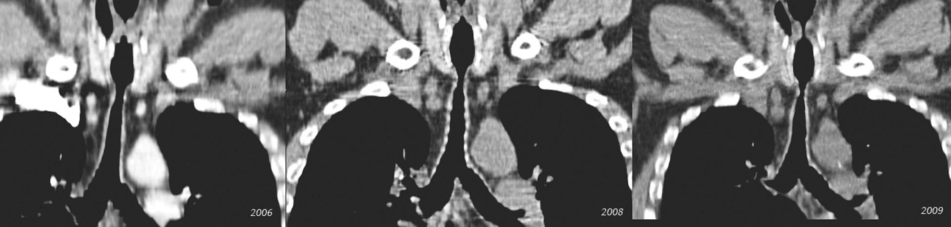Postupná progresia stenózy v priebehu 4 rokov (pacient č. 5) Fig. 4. Gradual progression of the stenosis during a 4-year period (patient No 5)