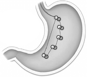 Schéma endoluminální plikace žaludku