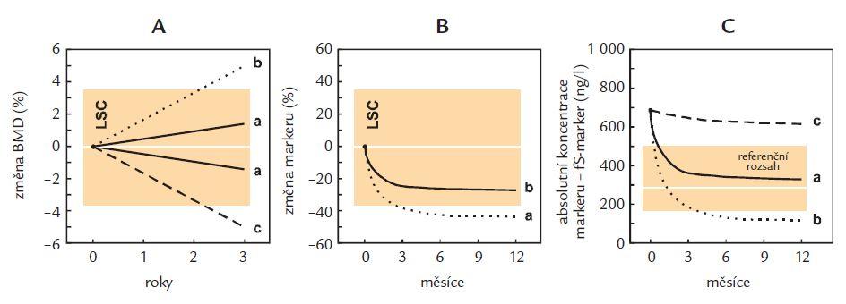Kritéria úspěšnosti antiresorpční léčby jednotlivých nemocných s osteoporózou.