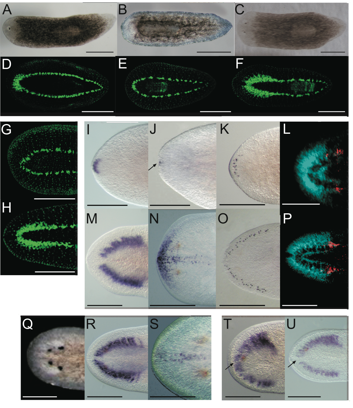 <i>Smed-prep(RNAi)</i> leads to the loss of anterior fate during regeneration.