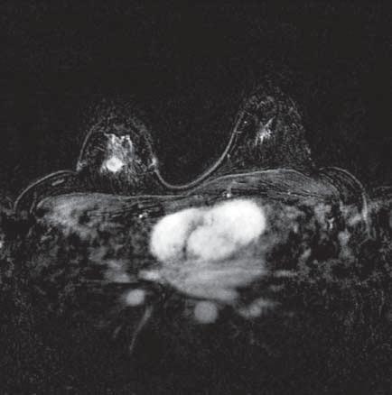 MR-snímek prsu – vlevo fyziologické sycení žlázy, vpravo ložisko tumoru