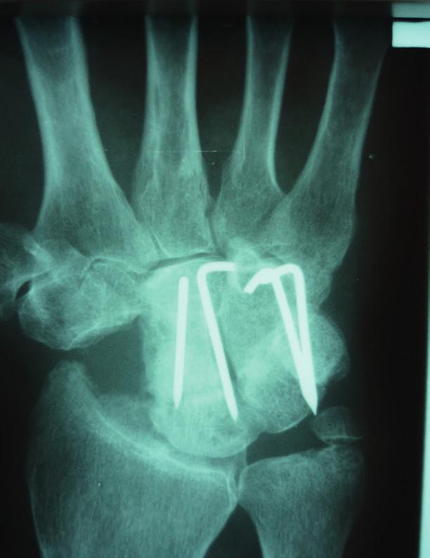 Rentgenový snímek zápěstí po mediokarpální artrodéze a exstirpaci os scaphoideum