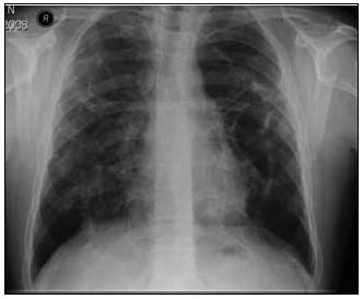 Zadopřední snímek hrudníku po 1/2 roce léčby kortikoidy.