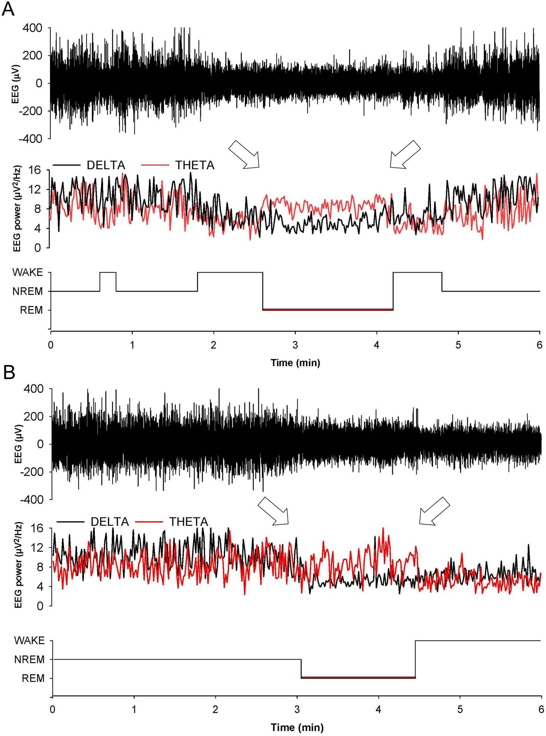 Entry in REM sleep is abnormal in Tg(FFI) mice.