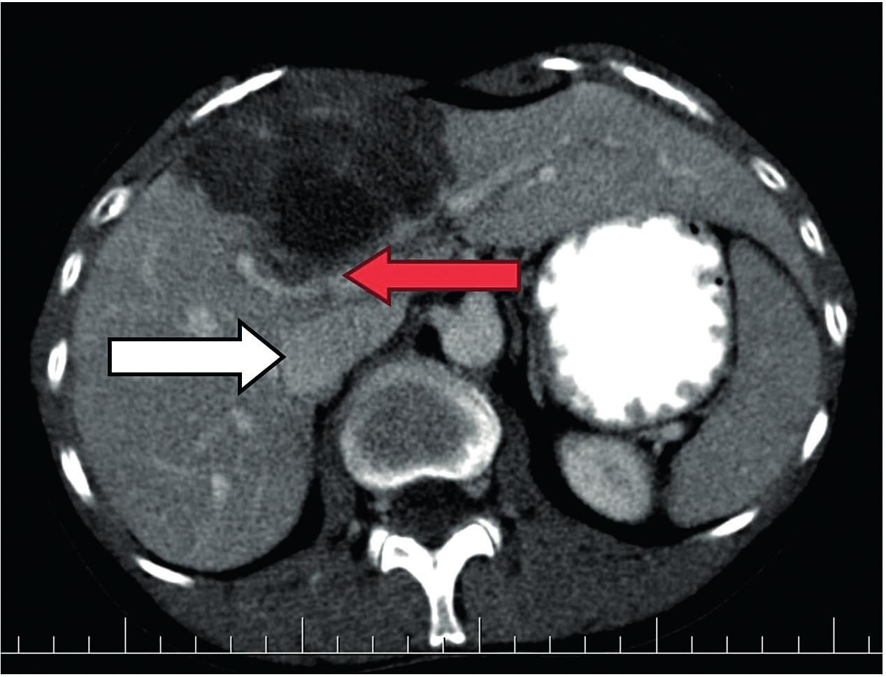 Difúzny útvar pravého laloka pečene prejavujúci sa evidentným infiltratívnym rastom (axiálna rovina).