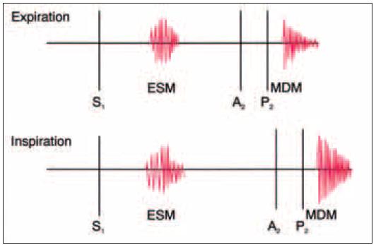 Auskultační nálezy defektu septa síní jsou charakterizovány relativně fixovaným rozštěpem druhé srdeční ozvy během inspirace i exspirace, ejekčním systolickým šelestem nad levým mezižebřím vlivem zvýšeného průtoku. Aortální a pulmonální komponenty druhé ozvy jsou stejnoměrně odloženy během inspirace vlivem fixního rozštěpu. Při velkém zkratu může být trikuspidální průtokový šelest slyšet podél levého kraje dolního sterna.