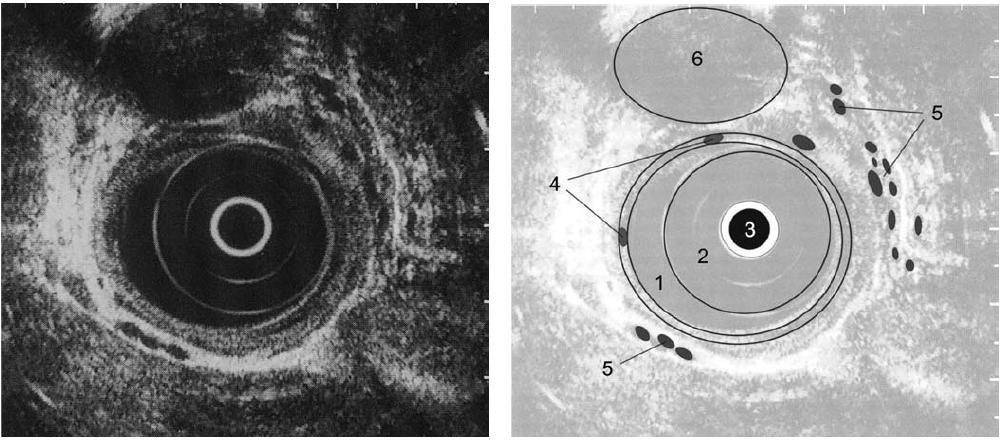 Obr. 3,4. EUS obraz jícnu: 1. lumen jícnu; 2. balonek endosonografu; 3. endosonografická sonda; 4. intramurální varixy; 5. paraesofageální varixy; 6. aorta.<br> Fig. 3,4. EUS image of the oesophagus: 1. oesophageal lumen; 2. endosonography balloon; 3. endosonographic probe; 4. intramural varices; 5. paraoesophageal varices; 6. aorta.