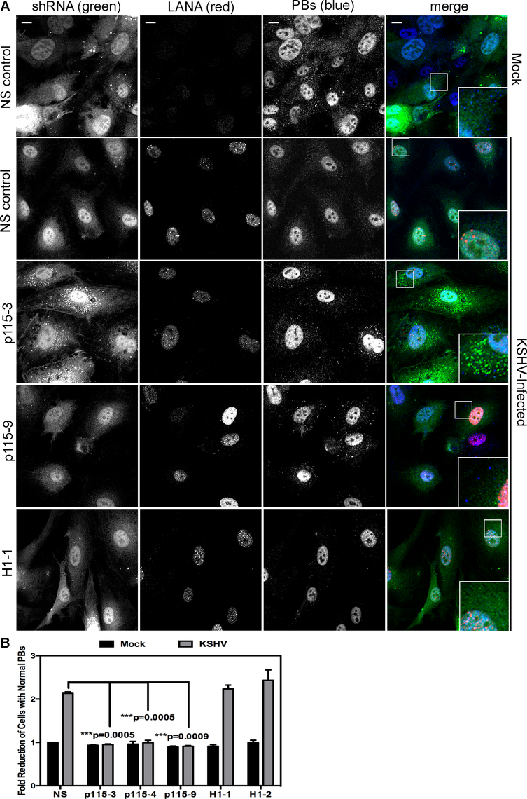 Knockdown of the Rho guanine exchange factor (GEF) p115 prevents KSHV-induced disruption of p-bodies in latently infected endothelial cells.