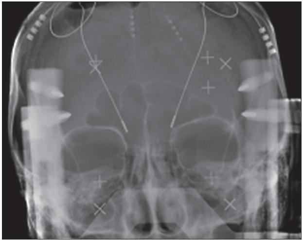 Obr. 13. Intraoperační rentgenologická kontrola zanořených elektrod.