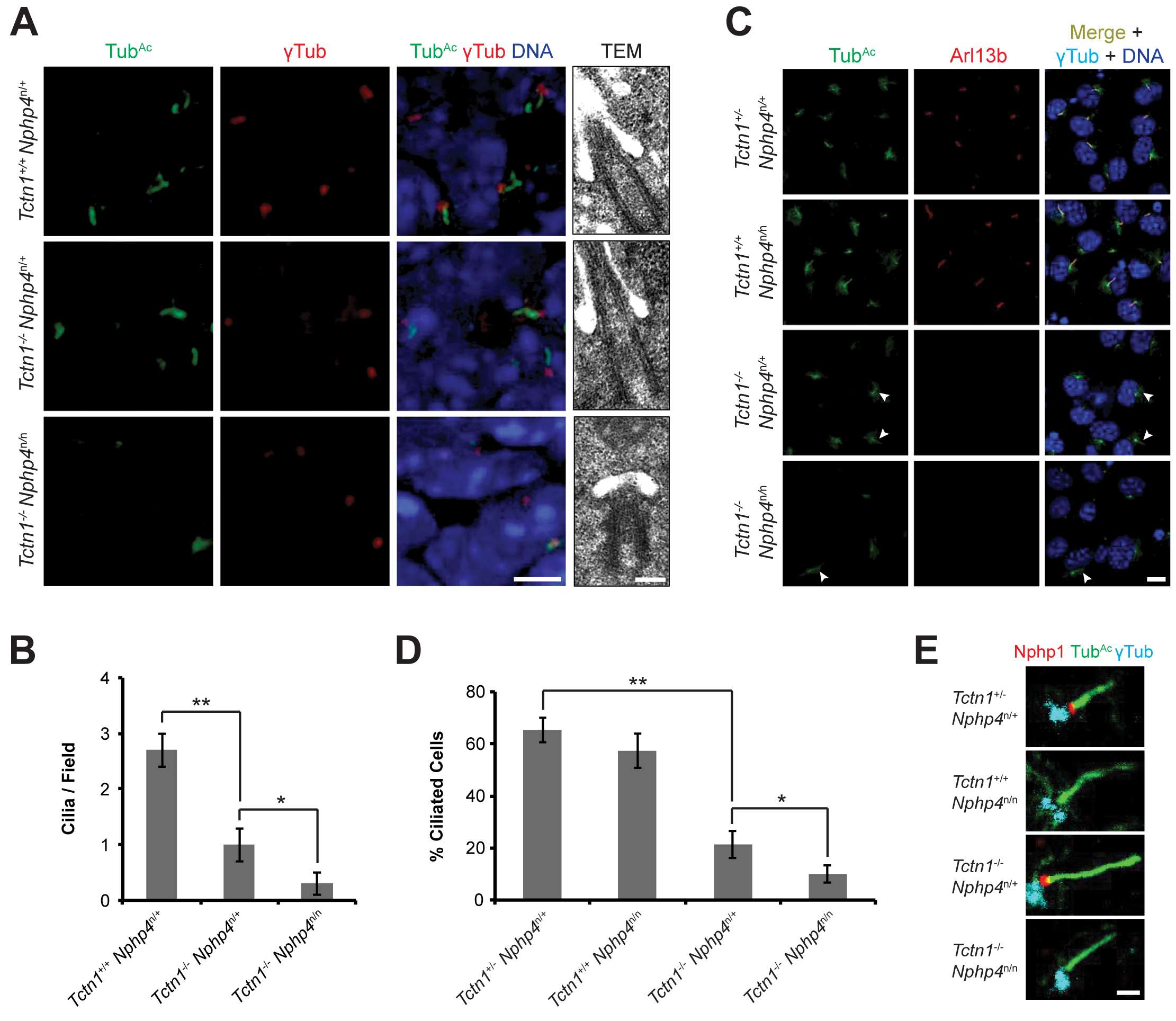 Mouse Tctn1 and Nphp4 have distinct roles in transition zone composition and overlapping roles in ciliogenesis.